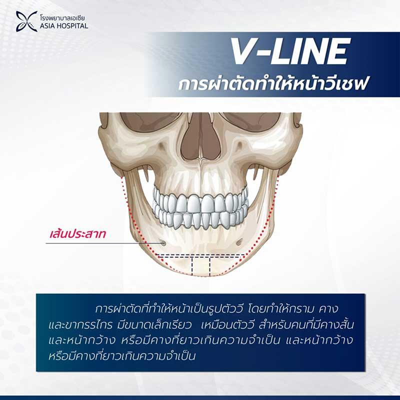 วีไลน์-V-line