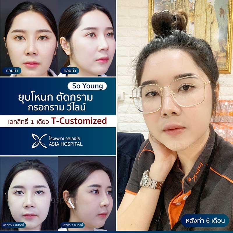 soyoung-ทำวีไลน์-vline
